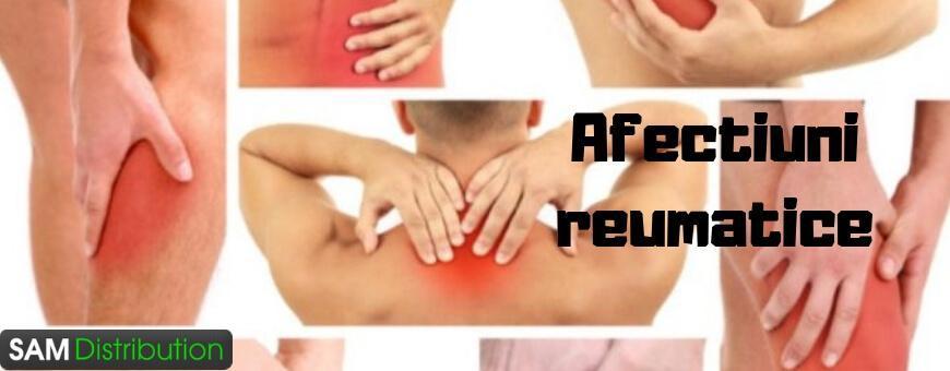 Afectiuni reumatice » Cele mai bune tratamente pentru reumatism