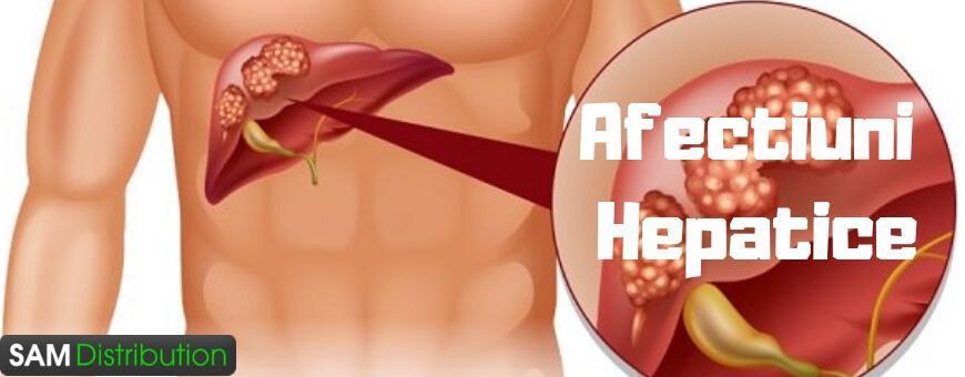 Afectiuni ale ficatului » Tratament pentru ficat